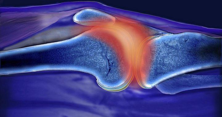 Ученые нашли белок, связанный с ревматоидным артритом
