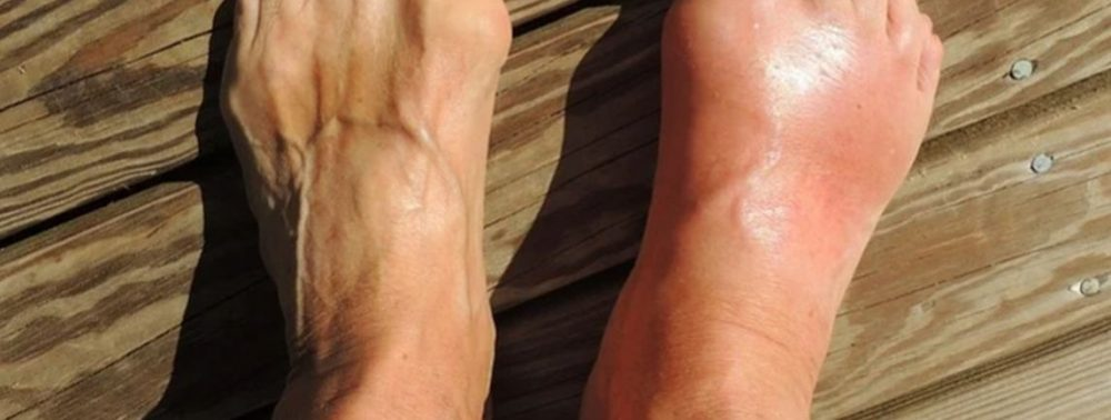 Ревматоидный артрит: пять проявлений, о которых многие не подозревают