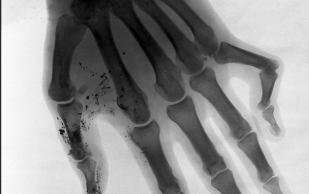 Артрит: найдено вещество, останавливающее разрушение костей