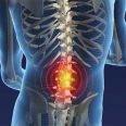 Убирать боль в позвоночнике следует только после выявления причины, говорят медики