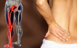 Боль в нижней части спины, отдающая в ногу
