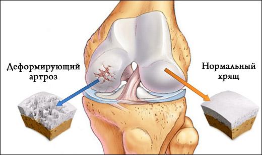 Характеристика деформирующего артроза коленного сустава