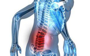 Остеохондроз: когда надо обращаться к врачу