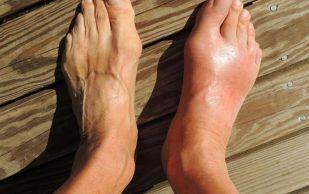 Предупреждение об артрите: некоторые полезные продукты могут вызывать обострение его симптомов