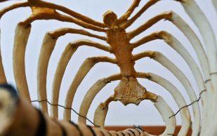 Наличие саркопении повышает риск остеопороза в 1,6 раза