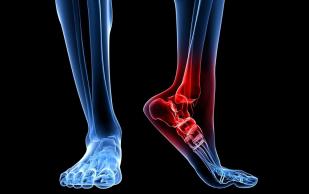 Лечение болей в суставах: 3 натуральные средства в помощь