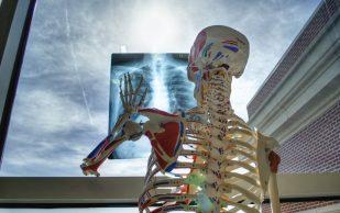 Эндокринолог рассказала о профилактике остеопороза