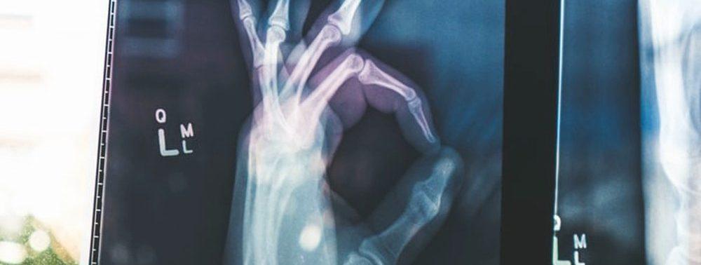 Определить риск остеопороза в будущем можно по весу при рождении