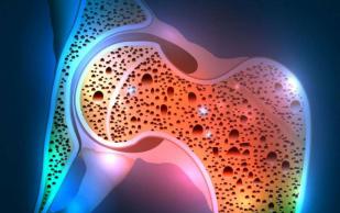 Остеопороз у женщин: симптомы и лечение заболевания