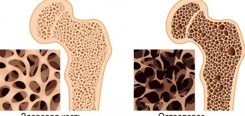 Почему коллаген важнее для костей, чем кальций