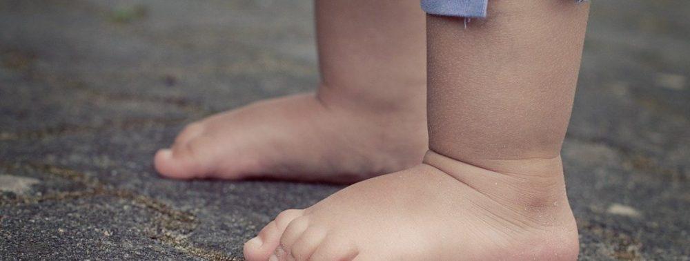 Врач рассказал, как распознать у ребёнка синдром короткой ноги