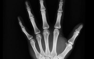 Ученые выяснили, какой процент костной массы теряют женщины в постменопаузе